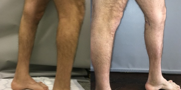 Calf Implant Before & After