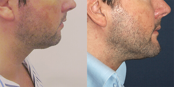 Chin implant 111 Harley ST.