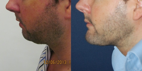 Chin Implant Before & After