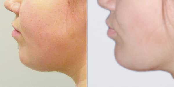 Chin Implant London 111 Harley St.