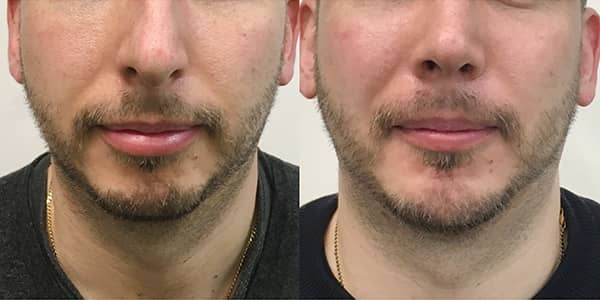 Chin Implant 111 Harley St. London