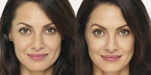 Dermal Filler Before & After
