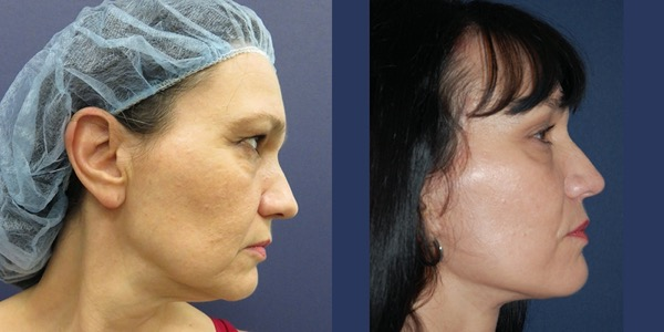 Facelift Before & After