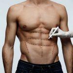 Vaser Liposuction CN