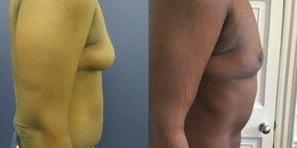 Gynaecomastia Before & After