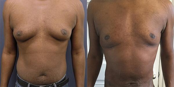 Gynaecomastia London Plastic Surgery