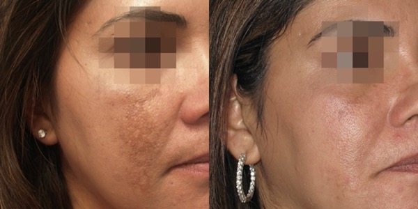 iPixel Laser Resurfacing Treatment Before & After