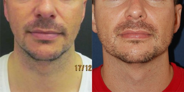 Jaw Implant Before & After