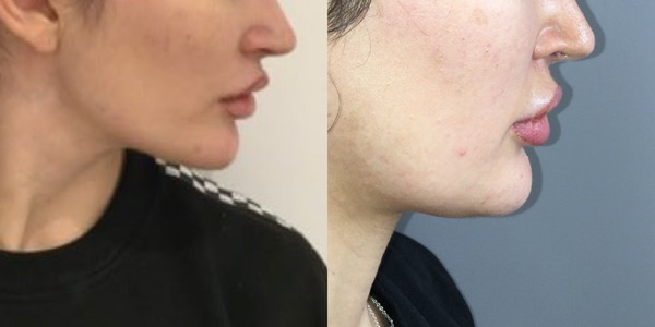 Jaw Reduction Before & After