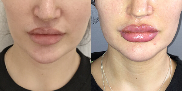 Jaw Reduction 111 Harley St.