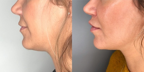 Lip Lift Before & After