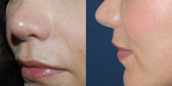 Lip Lift London Plastic Surgery