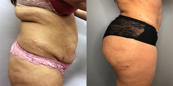 Liposuction 111 Harley St.