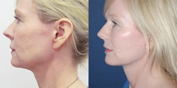 Neck Lift London Plastic Surgery