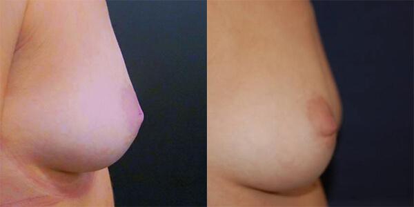 Nipple Correction London Plastic Surgery