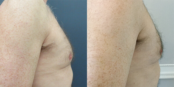 Pectoral Implant London Plastic Surgery