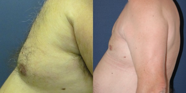 Pectoral Implants Before & After