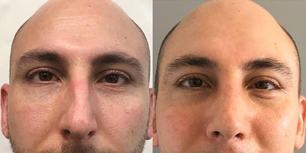 Rhinoplasty London Plastic Surgery