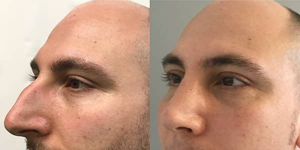 Rhinoplasty London Plastic Surgery
