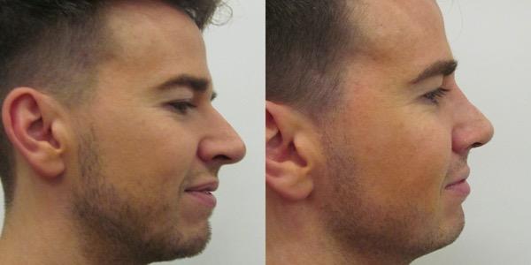 Septorhinoplasty Before & After