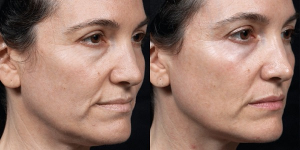 Thermage Skin Tightening Before & After