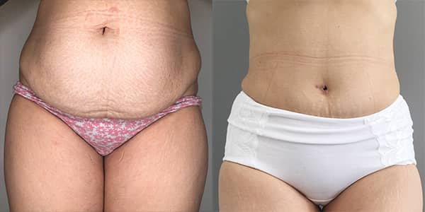 Tummy Tuck London 111 Harley St.