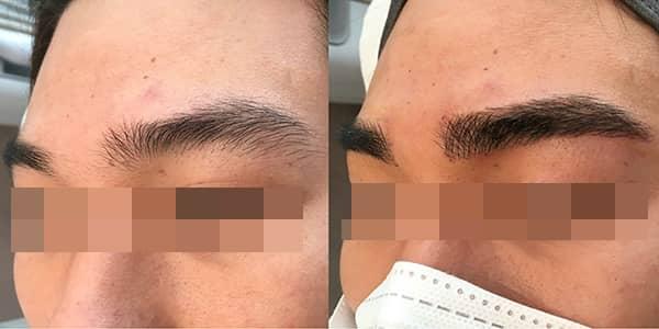 Korean Microblading Eyebrows London