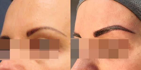 London Cosmetic Tattooing - Eye Brow
