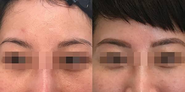 Korean Microblading Eyebrow London