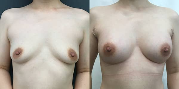 Breast Enlargement London Plastic Surgery