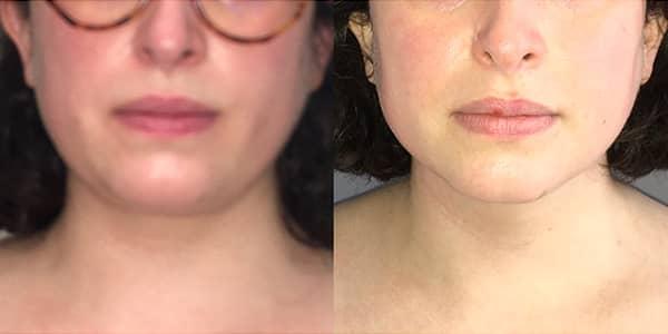 Chin Liposuction